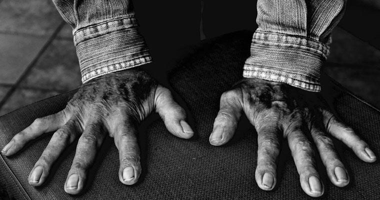 P-hygiene-B&W-older-hands